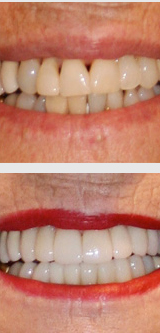 Dental crowns before and after.