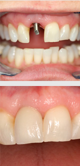 Implant before and after.