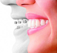 cosmetic dentistry denville